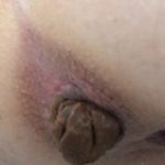 Sexy Girl Poops On Webcam For Us Out Of Her Shaven Asshole